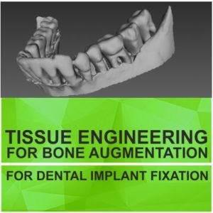 TISSUE ENGINEERING FOR BONE AUGMENTATION FOR DENTAL IMPLANT FIXATION